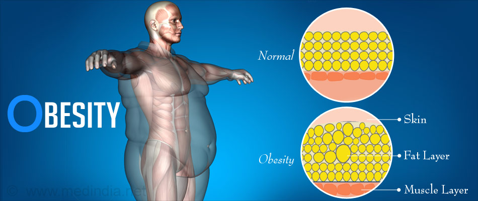 Obesity - Excess Body Fat
