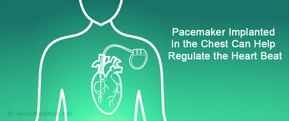 Pacemaker Implanted in the Chest Can Help Reglulate the Heart Beat