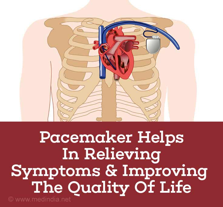 Pacemaker Helps in Relieving Symptoms & Improving the Quality of Life