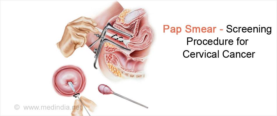 Human Papillomavirus Infection - Risk Factors, Symptoms ...
