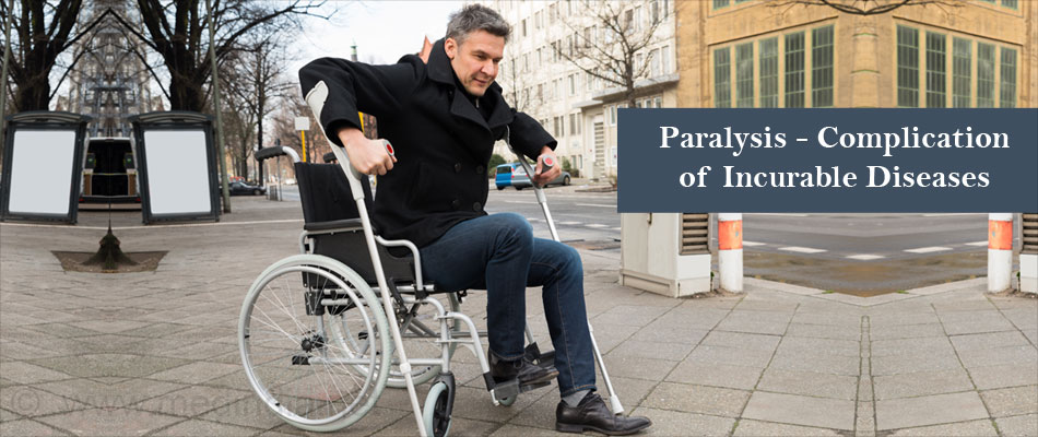 Paralysis - Complication of Incurable Diseases