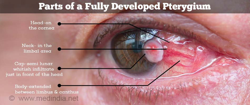 Parts of the Pterygium