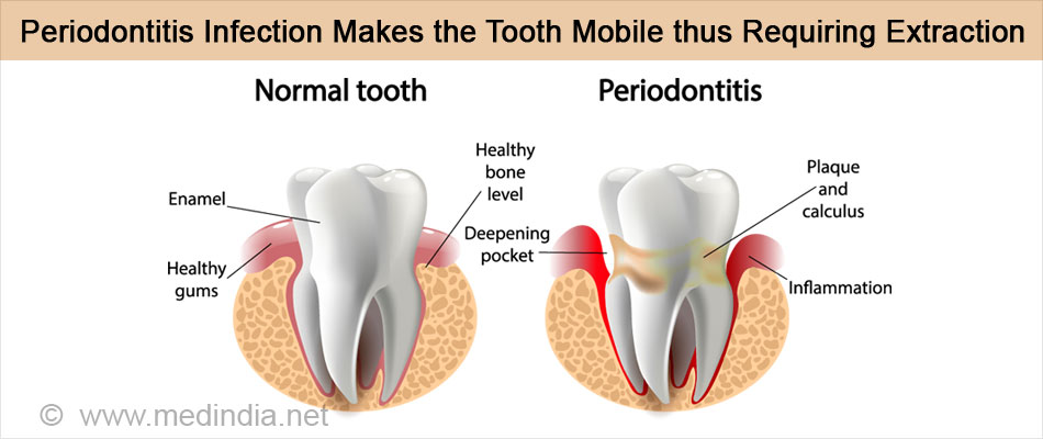 Periodontitis Infection Makes the Tooth Mobile and