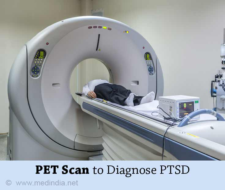 PET Scan to Diagnose PTSD