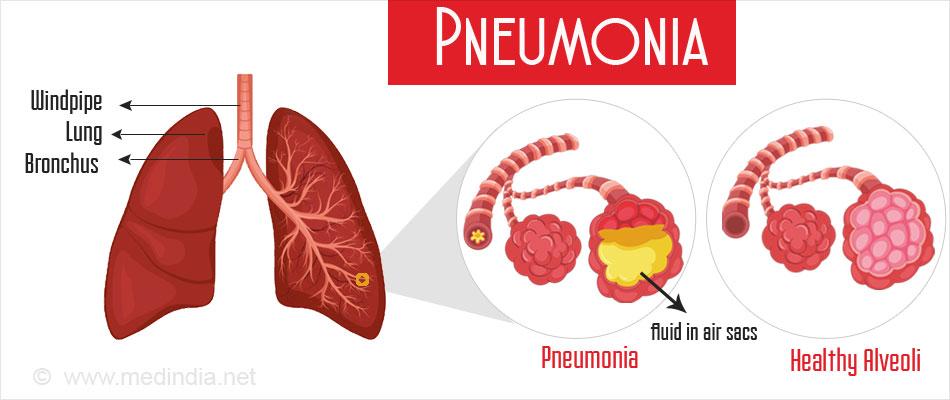 Natural Treatment Pneumonia Symptoms