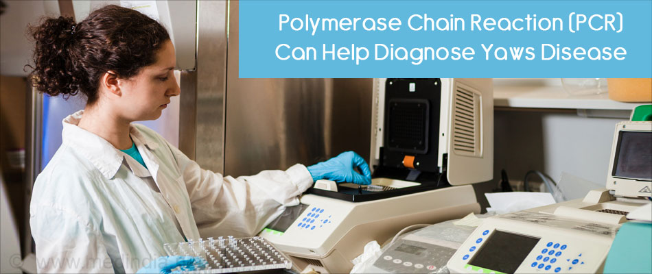 Polymerase Chain Reaction (PCR) Can Help Diagnose Yaws Disease