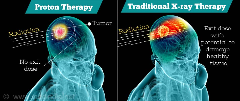 Proton Beam Therapy For Cancer Treatment