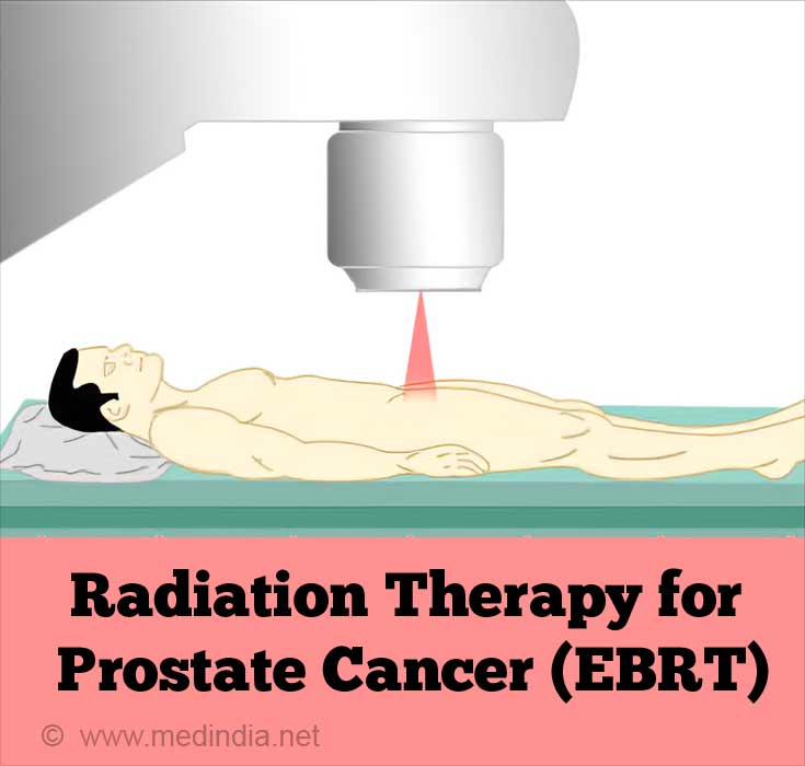Radiation Therapy Effective in Treating  Prostate Cancer