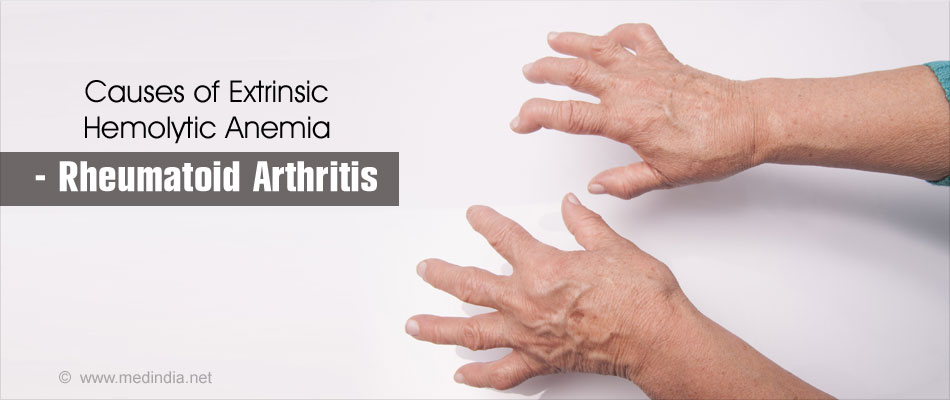 hemolytic anemia - causes, symptoms, diagnosis, treatment, Skeleton