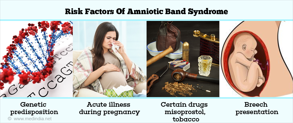Risk Factors of Amniotic Band Syndrome