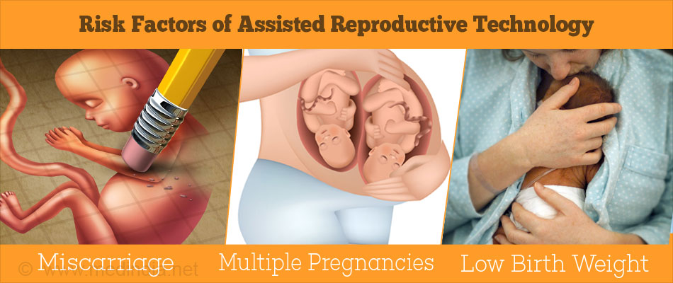 Risk Factors of Assisted Reproductive Technology