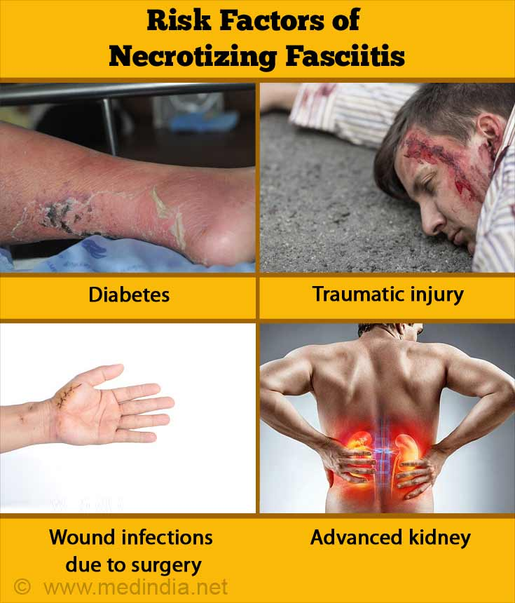 Risk Factors of Necrotizing Fasciitis