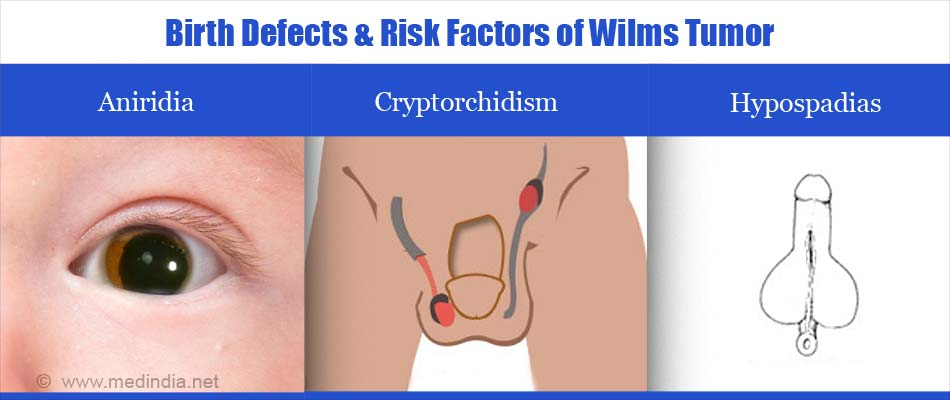 Risk Factors of Wilms Tumor