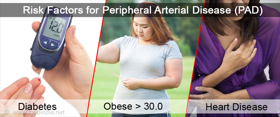 peripheral arterial disease facts and causes essay Cirm funds projects seeking to better understand arterial limb disease and to translate those arterial limb disease fact sheet peripheral limb.