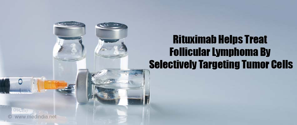 Rituximab Helps Treat Follicular Lymphoma By Selectively Targeting Tumor Cells