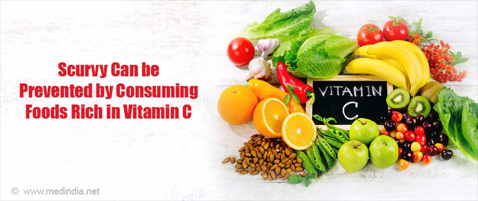 Scurvy can be Prevented By Including Foods Rich in Vitamin C in Your Diet