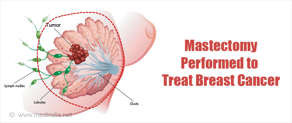 Segmental Mastectomy Performed to Treat Breast Cancer