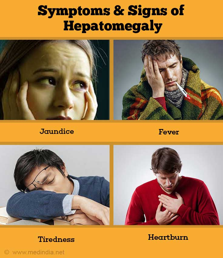 Signs and Symptoms of Hepatomegaly
