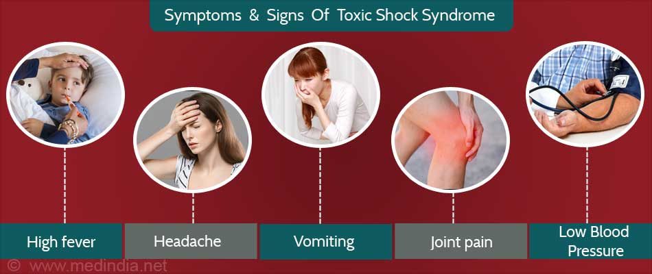 toxic shock syndrom Synonyms: tss, streptococcal toxic shock-like syndrome (stss), 'toxic strep' toxic shock syndrome (tss) is a multisystem inflammatory response to the presence.