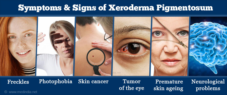 Signs & Symptoms of Xeroderma Pigmentosum