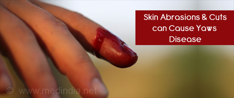 Skin Abrasion Can Cause Yaws Disease