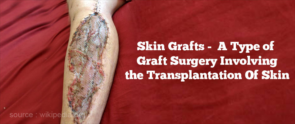 Skin Grafts - A Type of Graft Surgery Involving the Transplantation of Skin