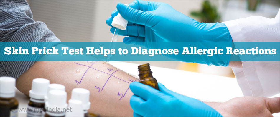 Skin Prick Test Helps To Diagnose Allergic Reactions