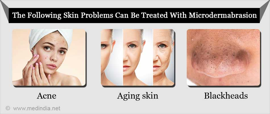 Following Skin Problems Can Be Treated With Microdermabrasion