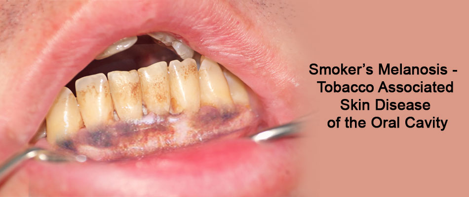 Smoker's Melanosis -  Tobacco Associated Skin Disease of the Oral Cavity