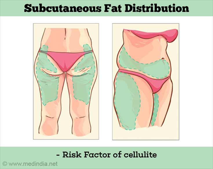 Subcutaneous Fat Distribution - Risk Factor of Cellulite