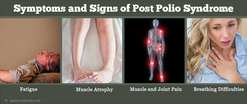 Symptoms and Signs of Post Polio Syndrome