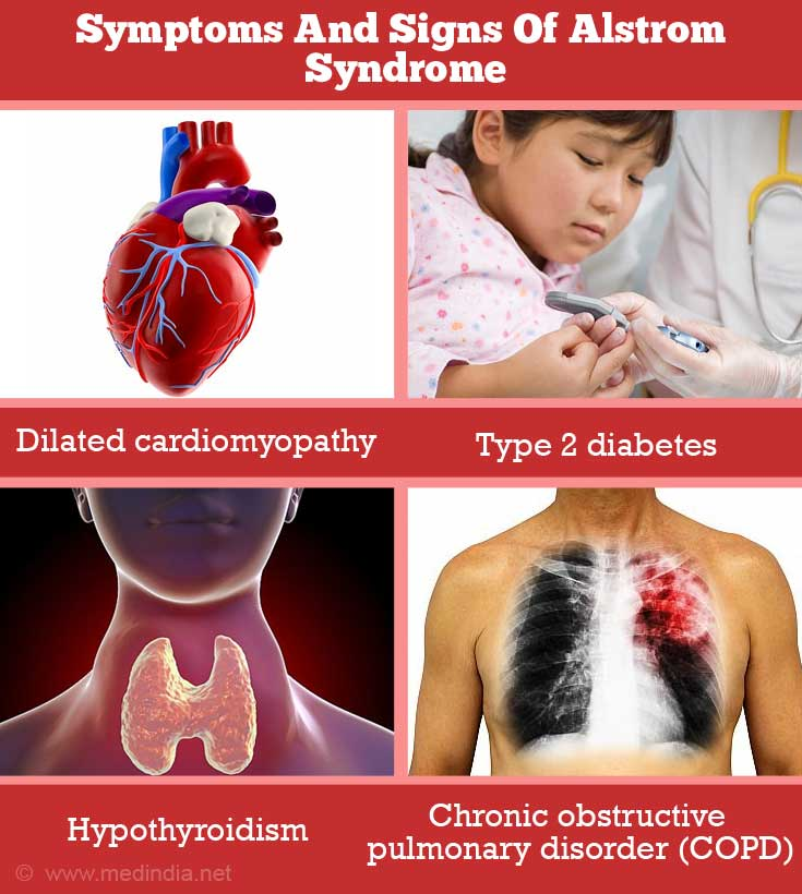 Symptoms and Signs of Alström Syndrome