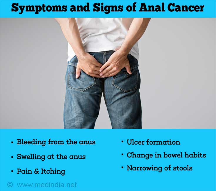 Cancer tomur pictures anal