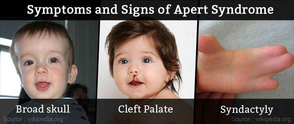 Symptoms and Signs of Apert Syndrome
