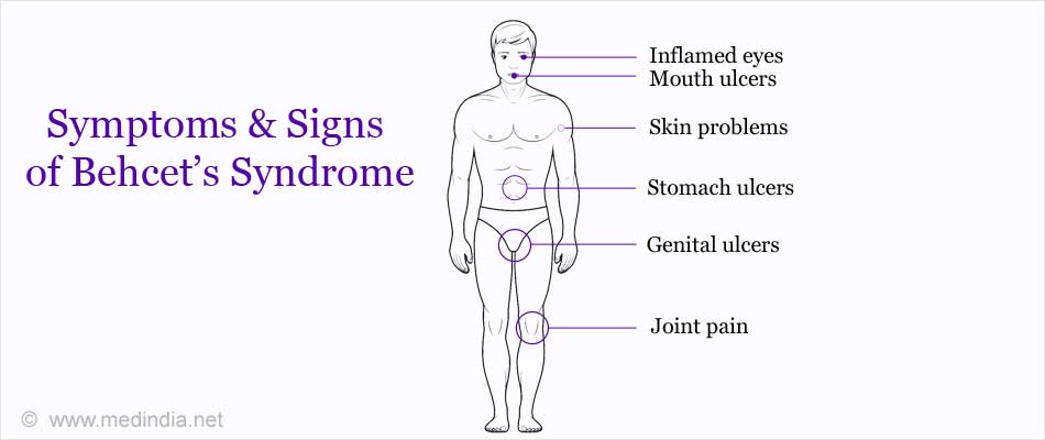 Symptoms & Signs of Behcet's Syndrome