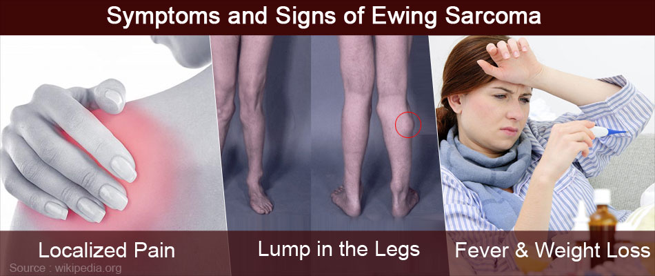 Symptoms and Signs of Ewing Sarcoma