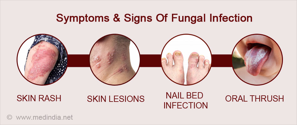 Symptoms & Signs of Fungal Infection