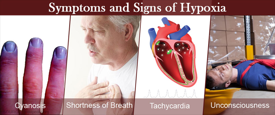 Symptoms and Signs of Hypoxia