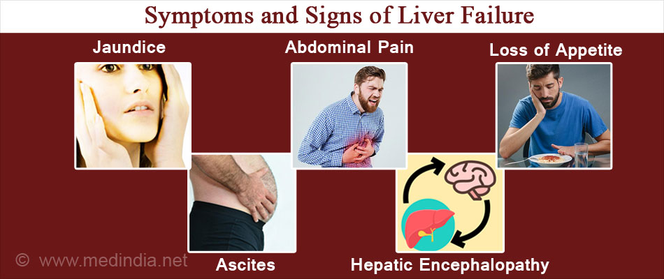 Symptoms and Signs of Liver Failure