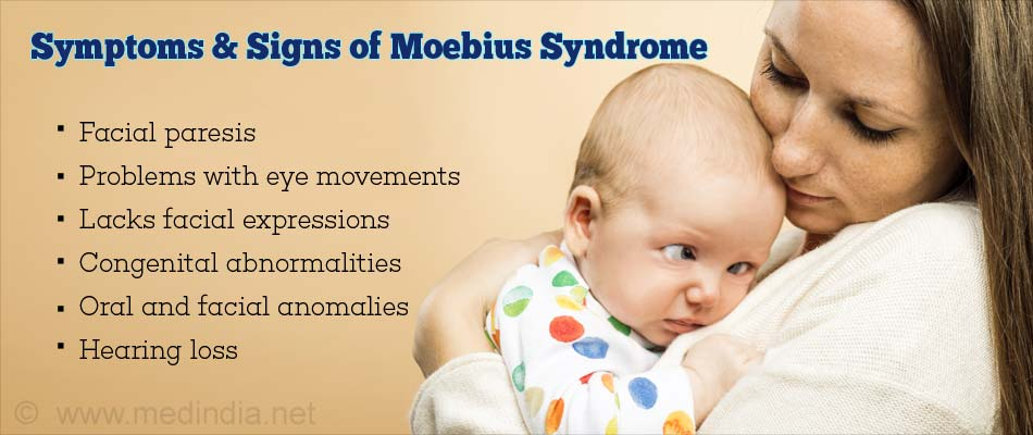 Symptoms & Signs of Moebius Syndrome