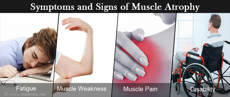 Forum on this topic: Spinal Rheumatoid Arthritis Symptoms Causes And Treatment , spinal-rheumatoid-arthritis-symptoms-causes-and-treatment/