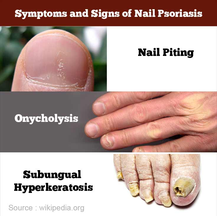 Symptoms and Signs of Nail Psoriasis