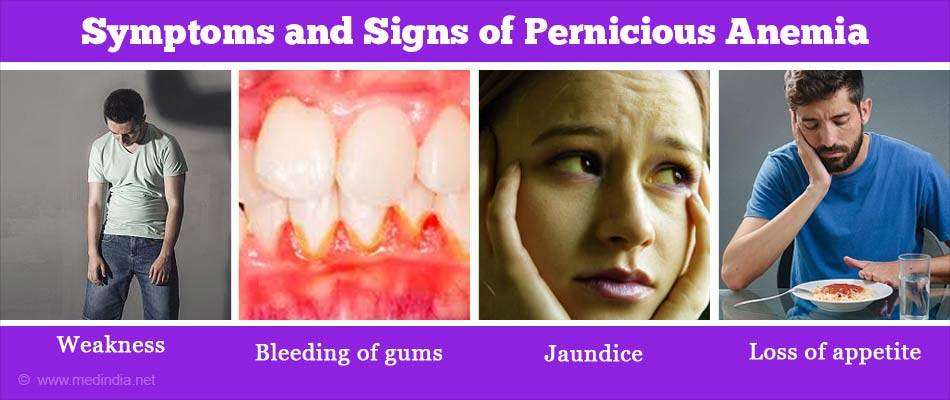 Symptoms and Signs of Pernicious Anemia