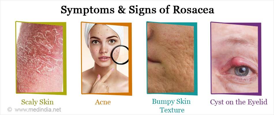 Symptoms & Signs of Rosacea