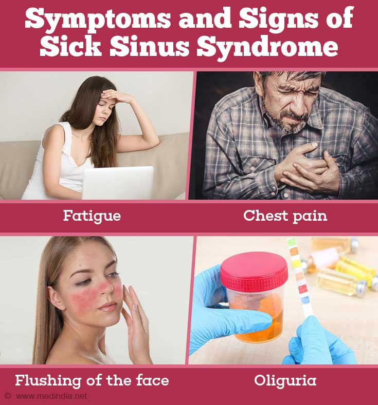Symptoms and Signs of Sick Sinus Syndrome