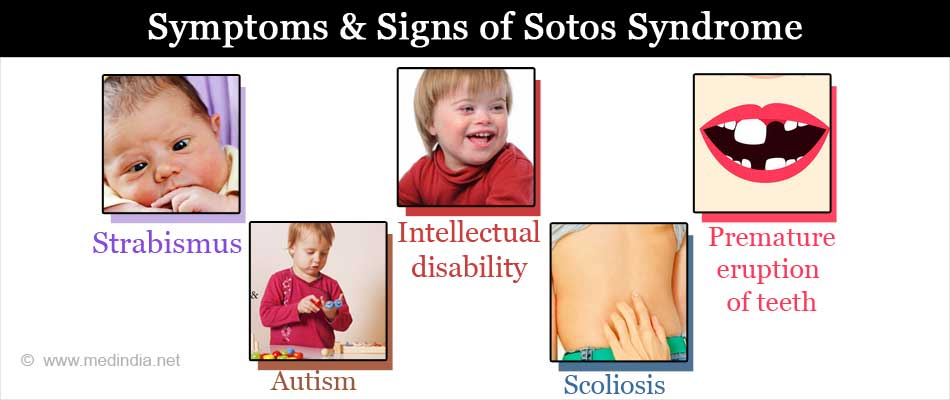 Symptoms & Signs of Sotos Syndrome