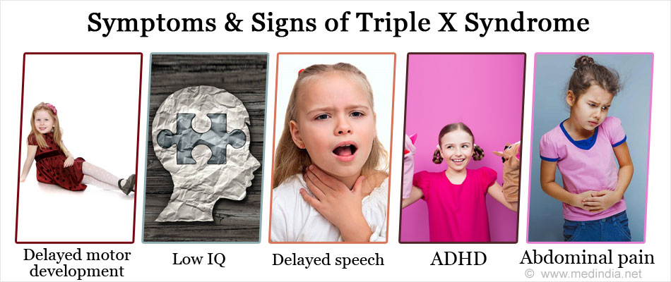 Symptoms & Signs of Triple X Syndrome