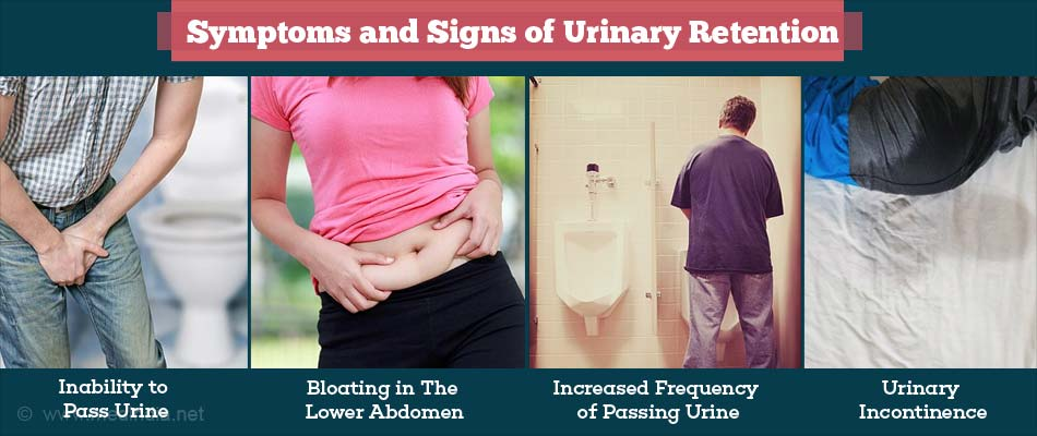 Symptoms and Signs of Urinary Retention