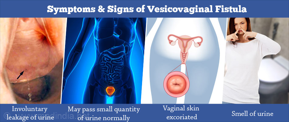 Symptoms and Signs of Vesicovaginal Fistula