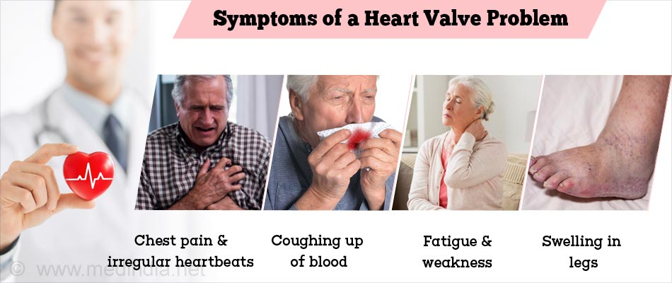 the symptoms treatment and prognosis of heart valve disease Mitral valve stenosis causes a narrowing of the heart valve and produces minimal symptoms learn about the various surgical treatments available at upmc.